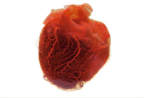 0214-human_heart